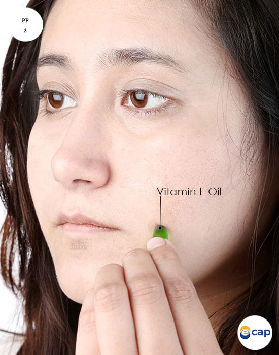 phuong-phap-2-duong-da-bang-vitamin-e-mun-trung-ca